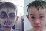 Trang điểm chơi Halloween, bé trai bỏng da mặt