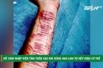Dùng dao lam tự hủy hoại cơ thể, nữ sinh nhập viện tâm thần