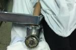 Cấp cứu bệnh nhân bàn tay dập nát vì bị cuốn vào máy xay thịt