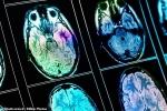 Trường học Trung Quốc dùng máy quét não đo trí tuệ học sinh gây phẫn nộ