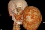 Dành 14 tiếng đồng hồ phẫu thuật cắt bỏ khối u to như quả bóng đá trên mặt chàng trai trẻ