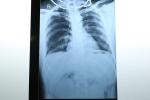 Bị nhiều vết thương thấu bụng, thấu ngực, nam bệnh nhân được cứu sống