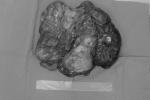 Cứu bệnh nhân có khối u mạc treo nặng hơn 10kg