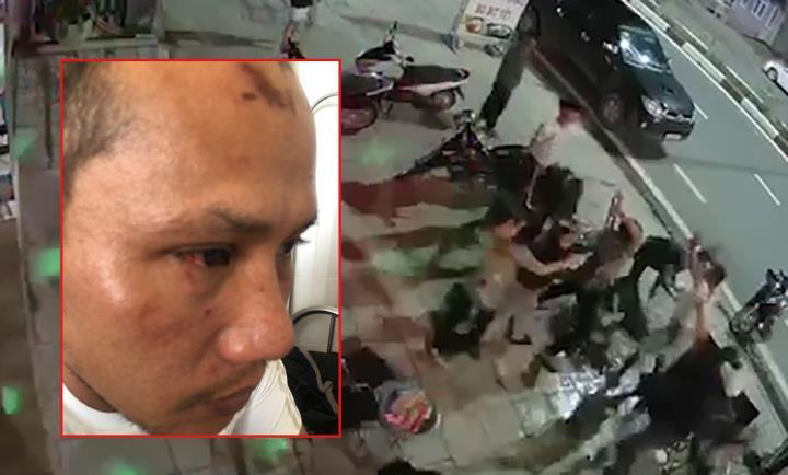 Triệu tập nhóm côn đồ đánh dã man người đàn ông ở quán nhậu - 1