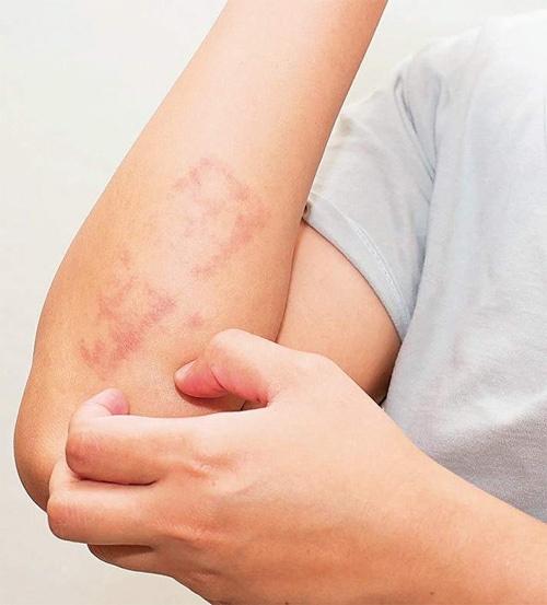 Bệnh vẩy nến làm tăng nguy cơ mắc nhiều loại ung thư - 1