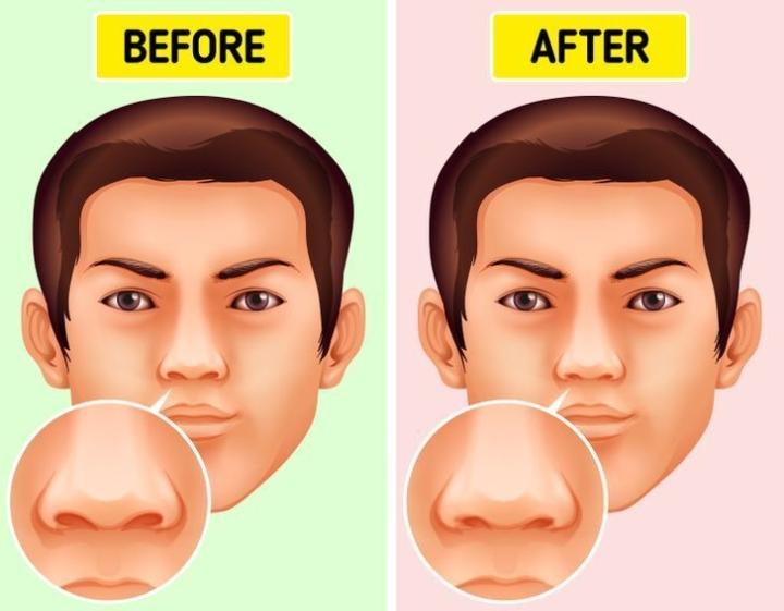 Ngoáy mũi gây hại gì cho sức khoẻ? - 2