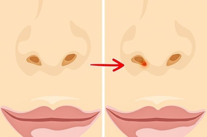 Ngoáy mũi gây hại gì cho sức khoẻ? - 5