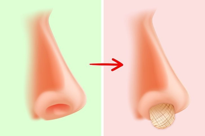 Ngoáy mũi gây hại gì cho sức khoẻ? - 4