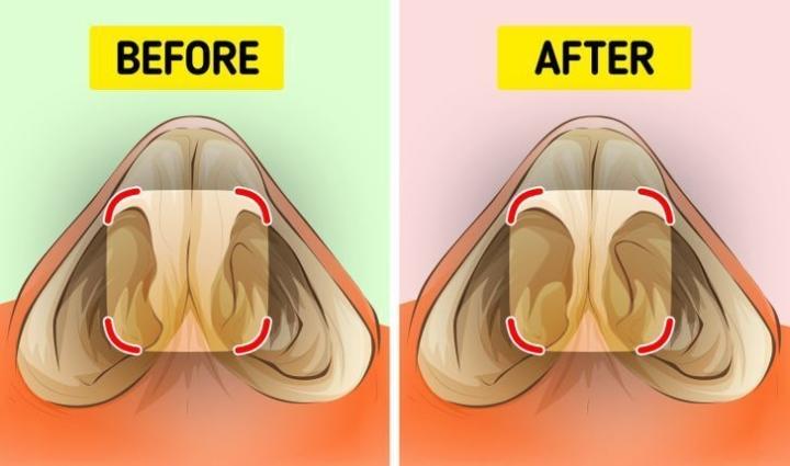 Ngoáy mũi gây hại gì cho sức khoẻ? - 6