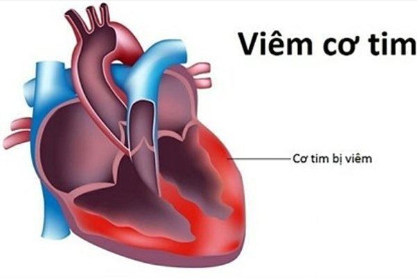 Viêm cơ tim sau tiêm vaccine COVID-19: Chẩn đoán, điều trị thế nào? - 1