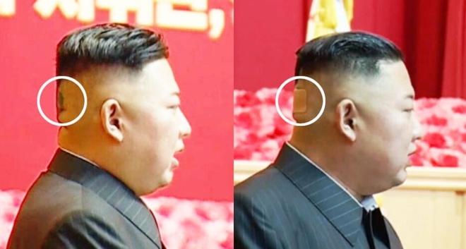 نوار پزشکی روی سر کیم جونگ اون جلب توجه می کند - 1