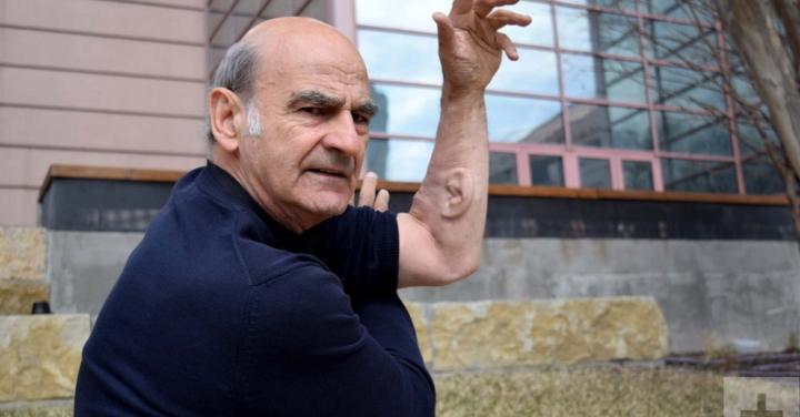 Kỳ lạ người đàn ông 'mọc' thêm tai ở cánh tay, nguyên do còn gây kinh ngạc hơn - 4