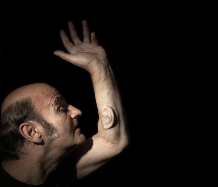 Kỳ lạ người đàn ông 'mọc' thêm tai ở cánh tay, nguyên do còn gây kinh ngạc hơn - 2
