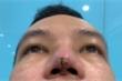 Làm đẹp ở spa, chàng trai suýt mất mũi, lộ thanh silicone