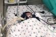 Dị dạng vòng nhẫn mạch máu hiếm gặp, bé trai 1.5 tháng tuổi suy hô hấp nặng