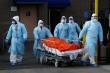 Hơn 1,7 triệu người Mỹ xét nghiệm SARS-CoV-2