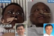 Trái chiều số phận 2 bác sỹ Vũ Hán cùng bị đổi màu da vì COVID-19