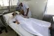 2 bệnh nhân Khánh Hoà ngộ độc pate Minh Chay phải thở máy