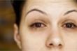 Biến chứng nguy hiểm trên mắt ở bệnh nhân COVID-19