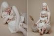 Vẻ đẹp thiên thần của 2 chị em bạch tạng 'đốn tim' cộng đồng mạng