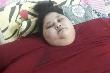 Người phụ nữ nặng nhất thế giới sắp được phẫu thuật để giảm cân