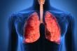 10 biện pháp giúp bạn phòng ngừa ung thư phổi