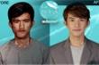Chàng trai 22 tuổi lột xác như nam thần Hàn Quốc sau thẩm mỹ