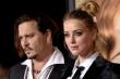 Tài tử Johnny Depp công bố ảnh nhập viện vì bị vợ cũ đánh