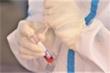 Thêm 9 bệnh nhân ở Bệnh viện Tâm thần Quảng Nam mắc COVID-19 chưa rõ nguồn lây