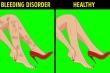 Những dấu hiệu bất thường ở chân cảnh báo bệnh nguy hiểm