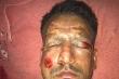 Đốt pháo hoa mừng Giáng Sinh, cầu thủ bị tai nạn biến dạng khuôn mặt