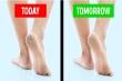 Mẹo hay giúp đôi bàn chân luôn nuột nà, hoàn hảo bất chấp giá rét