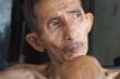 Cộng đồng thương xót người đàn ông da bọc xương sống trong nhà 7m2