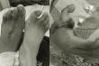 Cắt ngón chân ghép thành ngón tay cái cho nam thanh niên