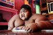 Bất ngờ với diện mạo mới của cậu bé từng nặng nhất thế giới