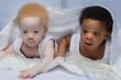Video: Cặp sinh đôi một da đen, một da trắng hiếm gặp