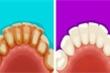 6 mẹo hay giúp loại bỏ mảng bám để có hàm răng trắng muốt