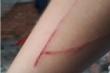 Thông tin bất ngờ liên quan vết rạch trên tay bé gái 15 tuổi bị hiếp dâm
