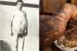 Người đàn ông chết khi cố đại tiện, ruột già được trưng bày trong bảo tàng Mỹ