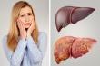 Những dấu hiệu cảnh báo cơ thể bạn cần phải giải độc