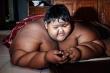 Cậu bé béo nhất thế giới giảm 83 kg ngoạn mục