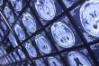 Trí tuệ nhân tạo thay con người chẩn đoán ung thư não nhanh gấp 10 lần