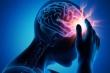 Những dấu hiệu cảnh bảo cơn đột quỵ đang đến gần