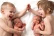 Tỷ lệ sinh đôi trên toàn cầu cao chưa từng có