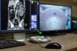 AI mất 20 giây để chẩn đoán bệnh nhân mắc Covid-19