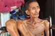 Video: Tìm thấy người đàn ông da bọc xương gây xúc động cộng đồng mạng