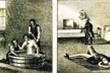 Phương pháp dùng nước chữa bệnh tâm thần của bác sĩ thế kỷ 19
