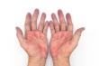 Có dấu hiệu này ở bàn tay bạn cần đến gặp bác sĩ ngay