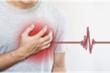 Nhồi máu cơ tim nguy hiểm thế nào?