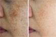 10 mẹo giúp giảm nám da, sạm da lành tính, hiệu quả
